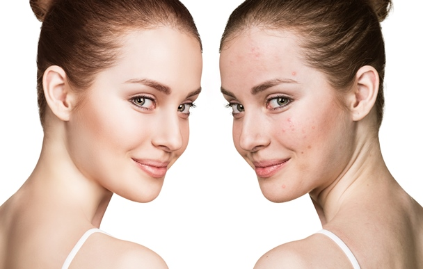 Facial Akne